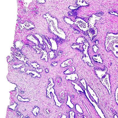 Anatomía patológica - histología